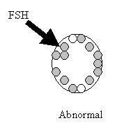 Abnormal FSH test